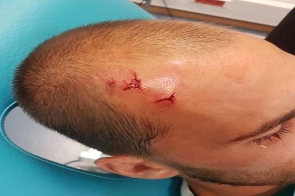 bas dost, sporting lissabon, hooligans, gewond